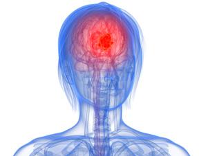 tumeur inoperable au cerveau